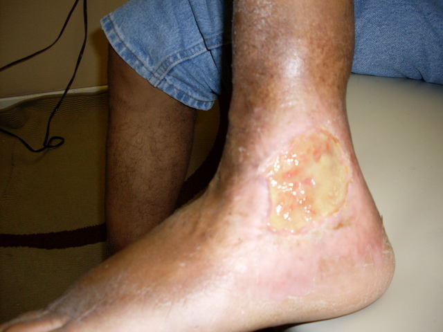 Gangrene Infection After Treatment