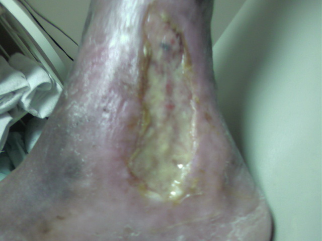 Gangrene Infection Before Treatment
